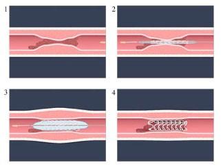 頚動脈狭窄説明書(CAS)2