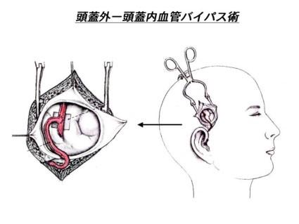 局所麻酔下頭蓋外-内血管バイパス術