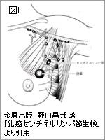 「センチネルリンパ節」(図1)